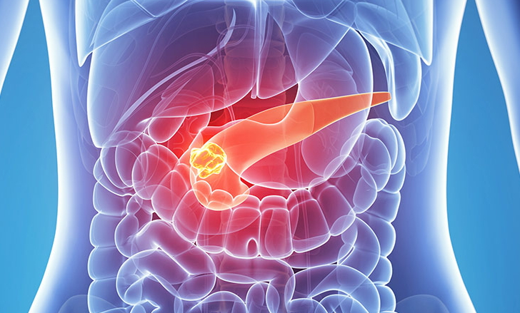 최악의 생존율로 악명 높은 췌장암 예방 식품 6가...