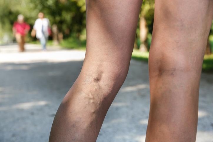 울퉁불퉁한 내다리, '하지정맥류' 악화요인과 예방...