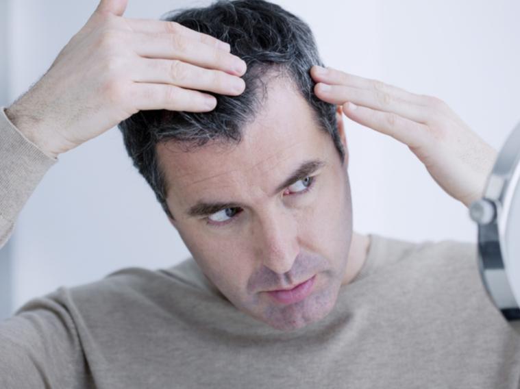 탈모의 요인들 및 탈모 예방책들 - 무엇이 문제인가?