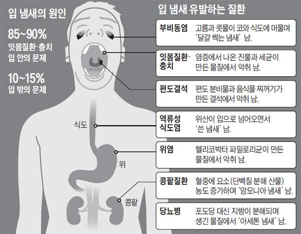 [헬스조선]입 냄새를 유발하는 원인/사진=헬스조선 DB