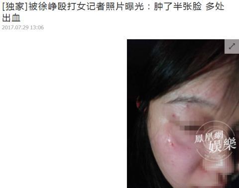 中 인기 남자배우 서쟁, 女 사진기자 폭행 후 경찰에 자수