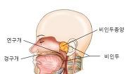 비인두 종양