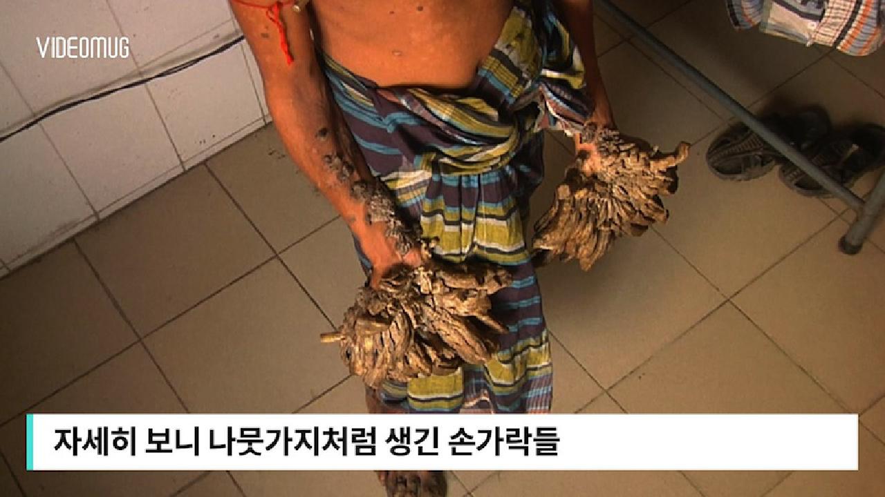 '나무손' 청년 화제, 희귀질환