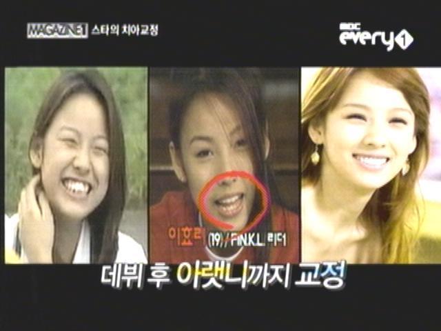 이효리,치아 교정(성형)으로 용된 스타 베스트 5,전후