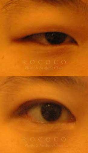 7965ec66ca2 로코코성형외과 :: '전체보기' 카테고리의 글 목록 (24 Page)