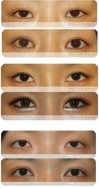 트임성형외과 - beautiful eyes story : Non-Incisional Double eyelid