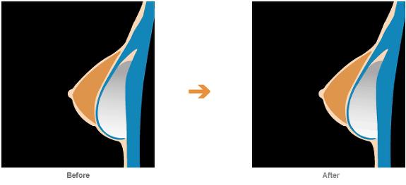 가슴 성형 안전성, 가슴 수술, 가슴 수술 안전성, 가슴성형, 가슴성형 FAQ, 가슴성형 부작용, 가슴성형 부작용 알기, 가슴성형 전후 사진, 가슴성형 질문, 물방울가슴성형, 물방울성형, 박진서, 박진석 성형외과, 유방, 유방 성형, 유방 성형 전후 사진, 코젤