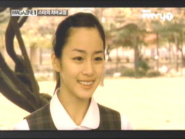 김태희,치아 교정(성형)으로 용된 스타 베스트 5