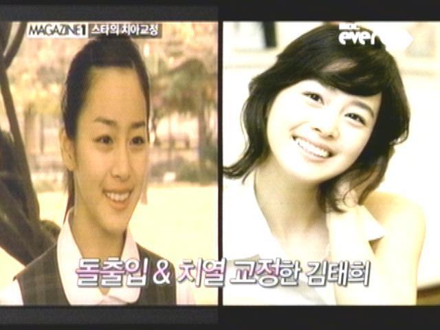 김태희,치아 교정(성형)으로 용된 스타 베스트 5,전후