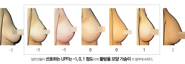 가슴성형,가슴성형수술,가슴모양