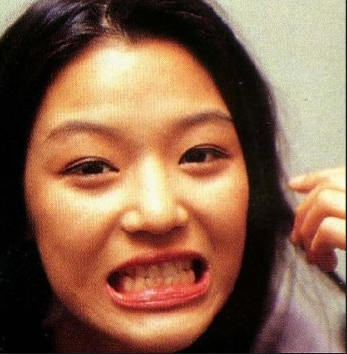 코수술 치아 교정 전 전지현