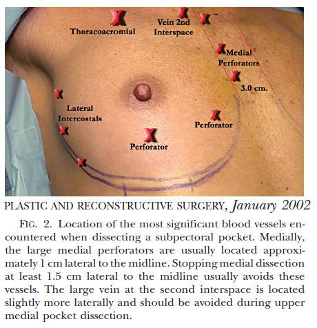 가슴성형부작용, 가슴성형부작용출혈, 가슴성형부작용혈종