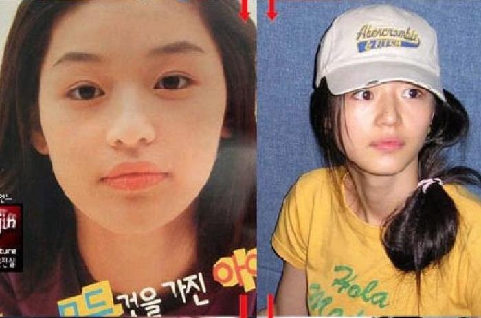 코 성형 수술 후 전지현