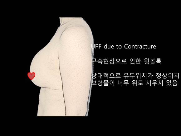 가슴성형부작용, 상방변위, 폭포수변형