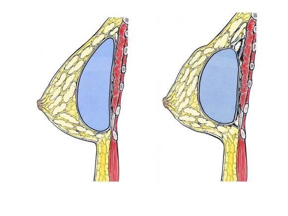가슴성형재수술