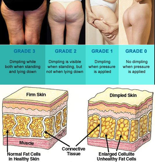셀룰라이트, 셀룰라이트없애는법, 셀룰라이트운동방법, 셀룰라이트없애기, 셀룰라이트치료법, 셀룰라이트다이어트,