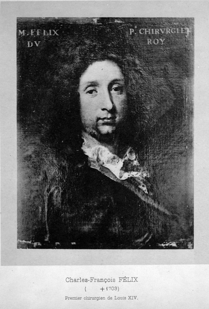사진: 1685년 프랑스 루이14세를 수술한 후 명성을 얻은 샤를 프랑수와 펠릭스의 초상화. 이발사 겸 외과의사였다. ['닥터'의 어원과 이발사, 외과의사 겸업 문제]