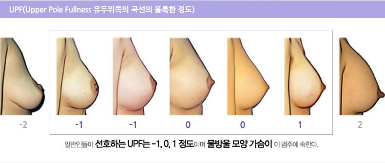 UPF,가슴성형