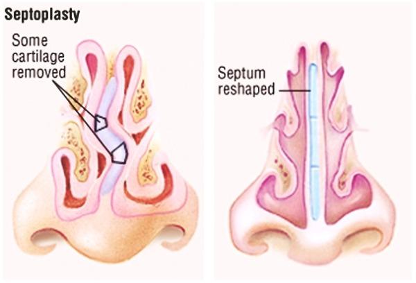 사진: 왼쪽이 휘어진 비중격, 오른쪽이 정상적인 비중격이다. 왼쪽의 경우 축농증, 만성비염으로 이어질 수도 있다고 한다. [비중격만곡증의 증상과 비염, 축농증]