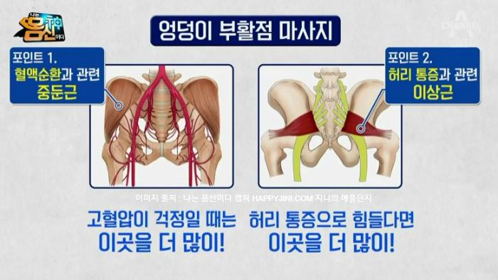 나는 몸신이다 214회 죽은 엉덩이 살리는 엉덩이 부활점 셀프 마사지법 2월 12일 방송4