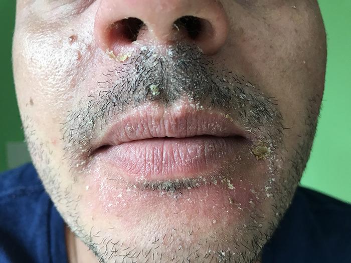 코 주변과 수염 주변의 지루성 피부염 - AAO Dermatology