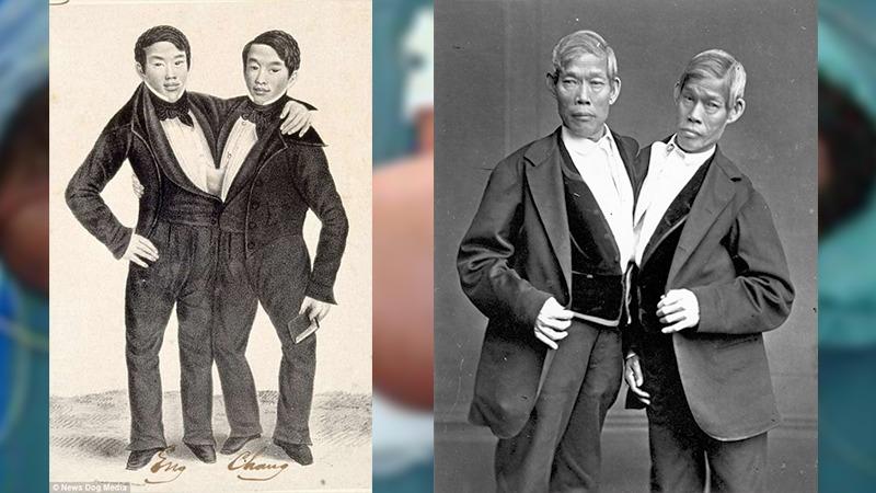 사진: 샴쌍둥이 유래가 된 벙커 형제. 태국에서 태어난 후 미국에 가서 살았다