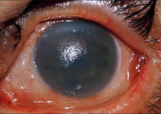각막의 접촉 화상