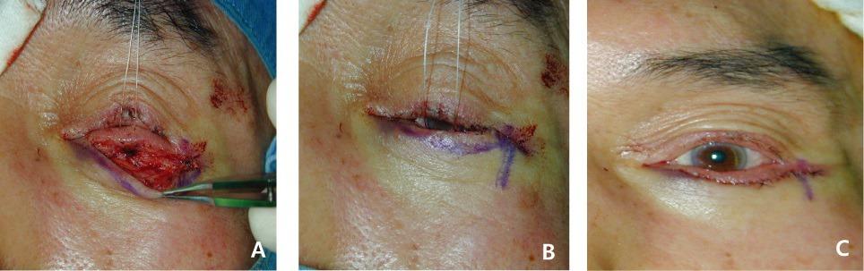 아래눈꺼풀당김기재부착술, Lower lid retractor reinsertion, LLRR 실제 수술 사진