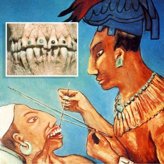 마야인 보석 치아 시술 Mayan jeweled teeth painting history