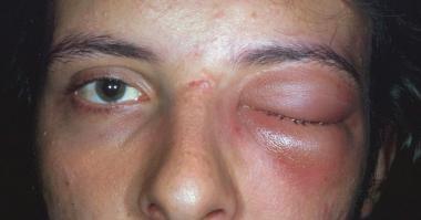 감염성 - 세균성 안와연조직염