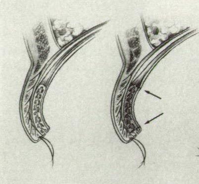 반흔성 눈꺼풀속말림, 반흔성 안검 내반, Cicatricial entropion