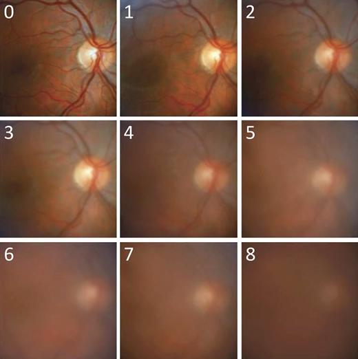 10단계의 유리체 혼탁 평가 - Am J Ophthalmol. 2010;150(5):637–641