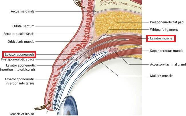 눈꺼풀 올림근 근육, Levator muscle 과 눈꺼풀 올림근 널힘줄, Levator aponeurosis