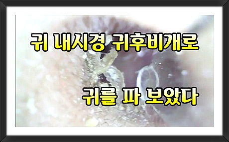 귀후비는 영상 유튜부 링크