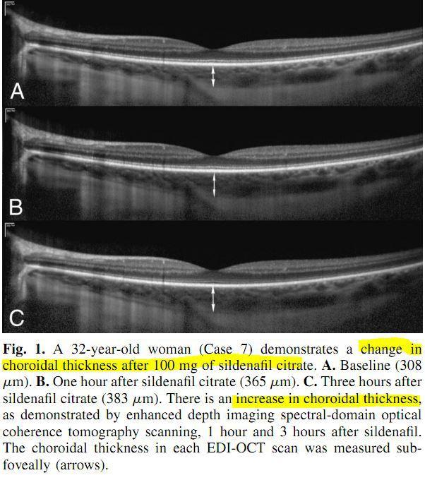 맥락막 두께 증가 (choroidal thickness increase)