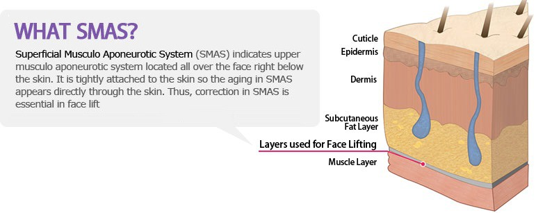 SMAS, Superficial Muscular Aponeurotic System