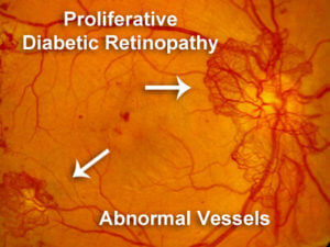 증식성 망막병증(Proliferative DR)에서의 신생혈관