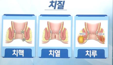 치핵 치열 치루 비교
