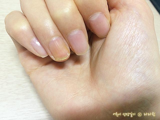 찢어진 손톱 복구