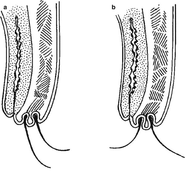 첩모난생, 속눈썹증 (Trichiasis)