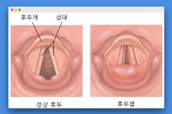 역류성 후두염