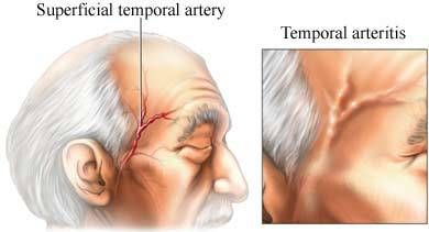 GCA때의 측두동맥염