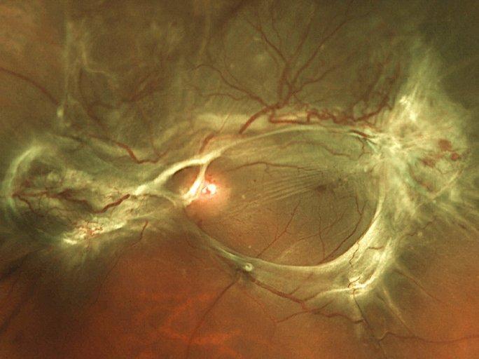 섬유화증식으로 인한 망막의 변형