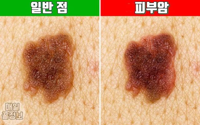 피부암 초기증상 5, 얼굴에 난 '큰점'이 피부암인지 구별하는 방법 5가지