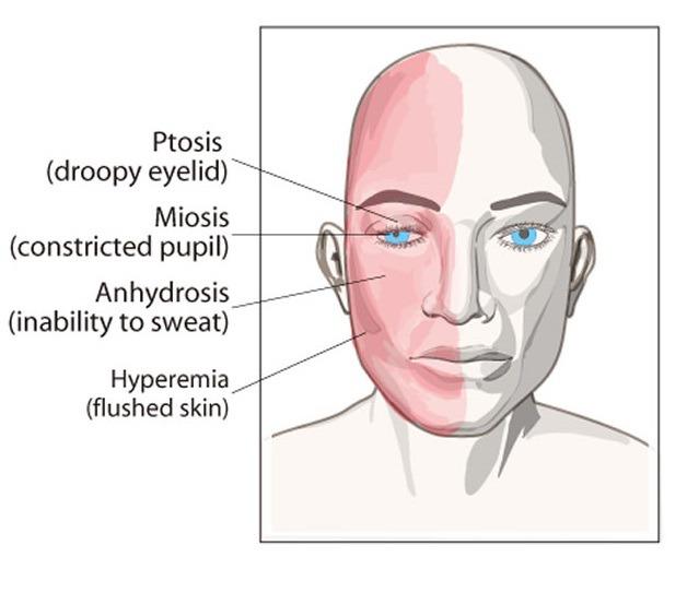 호르너증후군의 임상양상