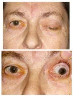 좌측 동안신경 마비로 인한, 좌안의 안구운동장애, 동공장애, 눈꺼풀 처짐