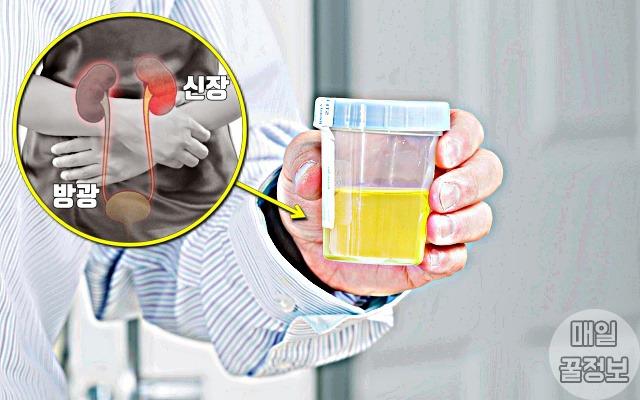 뿌연 소변, 신장이 안좋으면 나타나는 증상 7