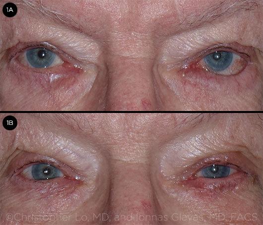 퇴행성 눈꺼풀 속말림의 치료 전후