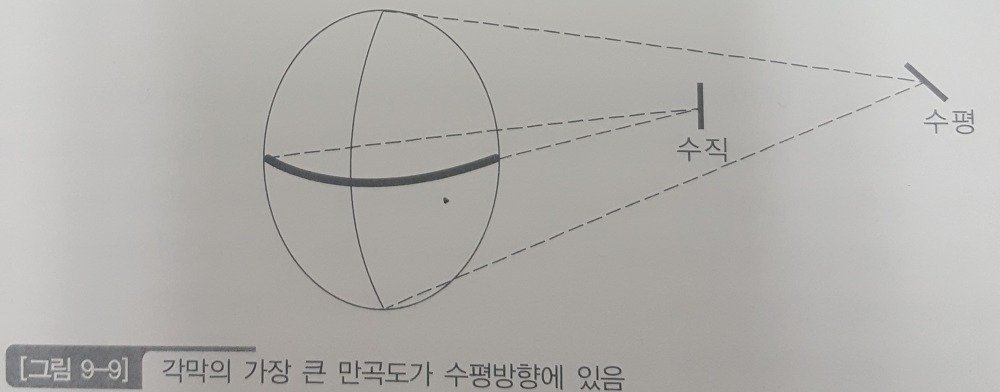 도난시 (ATR : Against the rule astigmatism)