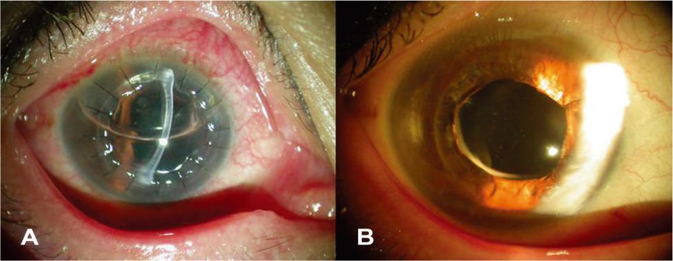 각막이식후에 발생한 Urrets-Zavalia syndrome - JKOS 2008;49(11):1857-1861